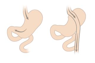 Как увеличь грудь в 10 лет